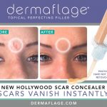 Conceal Scars & Wrinkles Instantly with Dermaflage, Plus a 15% Discount Code